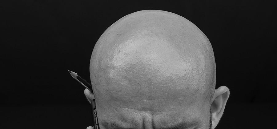 壮年性脱毛症とは