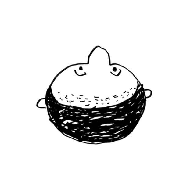 壮年性脱毛症のパターン