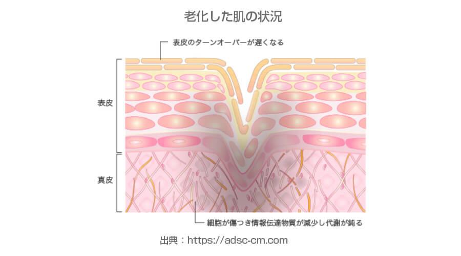 老化した肌の状況