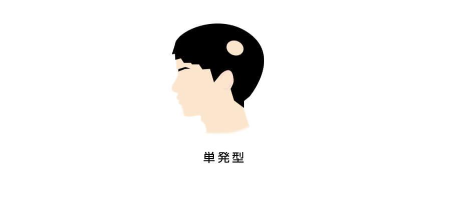 円形脱毛症単発型