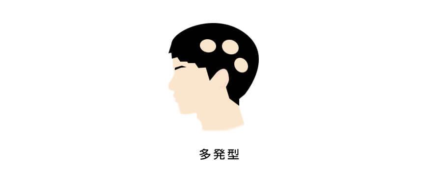 円形脱毛症多発型