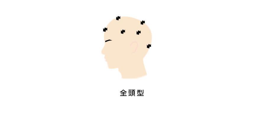 円形脱毛症全頭型