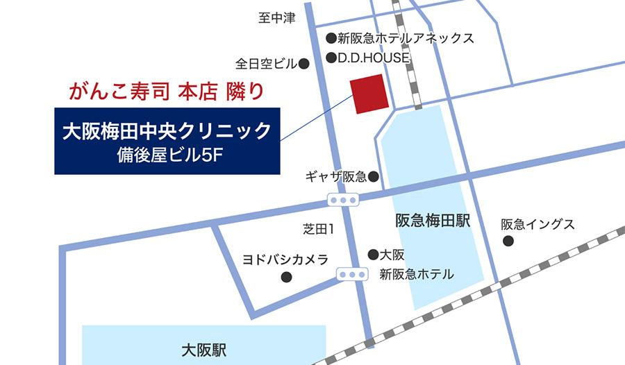 梅田駅徒歩一分のAGAクリニック